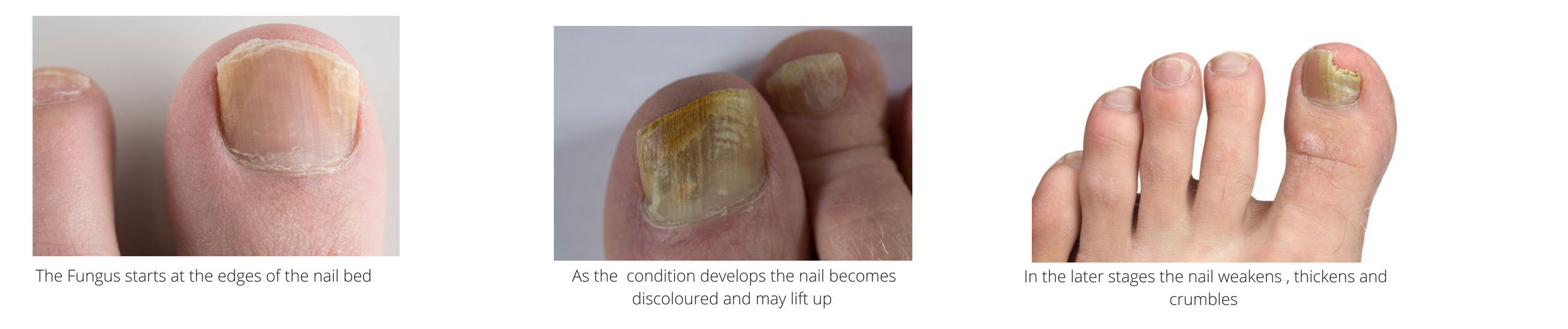 Toe nail fungus symptoms treatment, manchester, bolton, wigan, chorley, preston