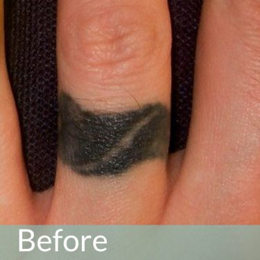 finger tattoo removal laser manchester tattoo removal, manchester, bolton, wigan, chorley, preston