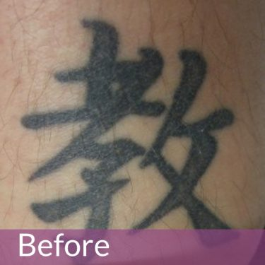 tattoo removal in manchester, bolton, wigan, chorley, preston