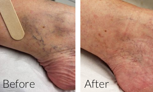 thread vein removal manchester, bolton, wigan, chorley, preston